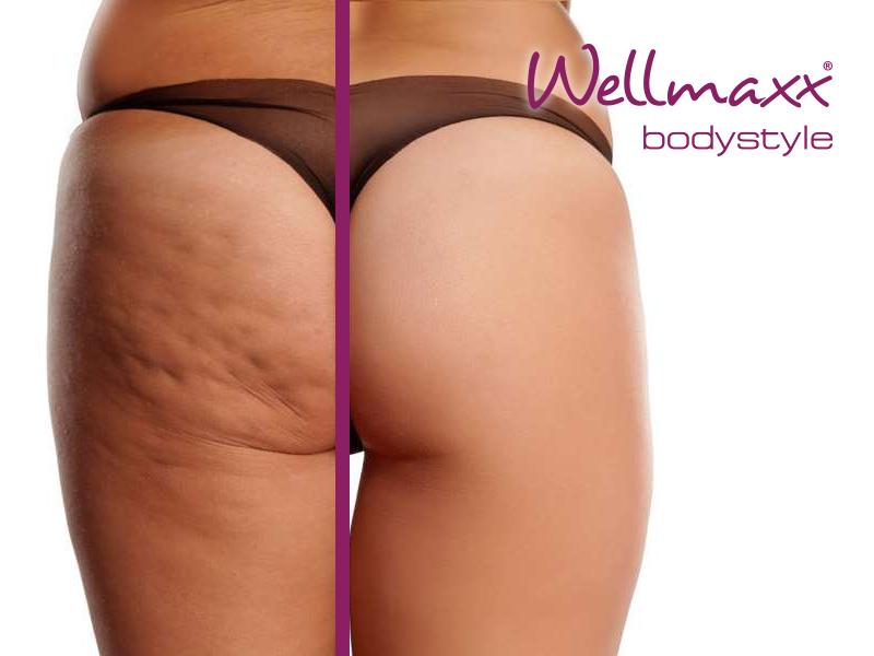 Wellmaxx bodystyle Behandlung